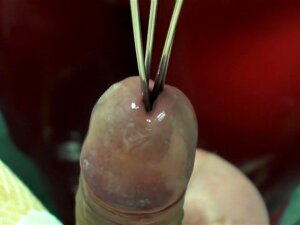 TC Big Balls Cock Tormented And Milked In The Clinic MP 4 HD Porn
